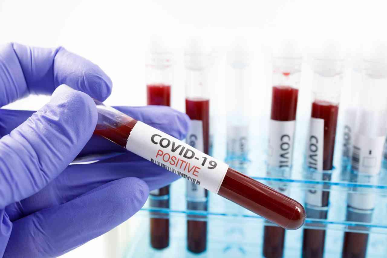 iStock 1208338915 - Coronavirus: i debolmente positivi saranno conteggiati a parte